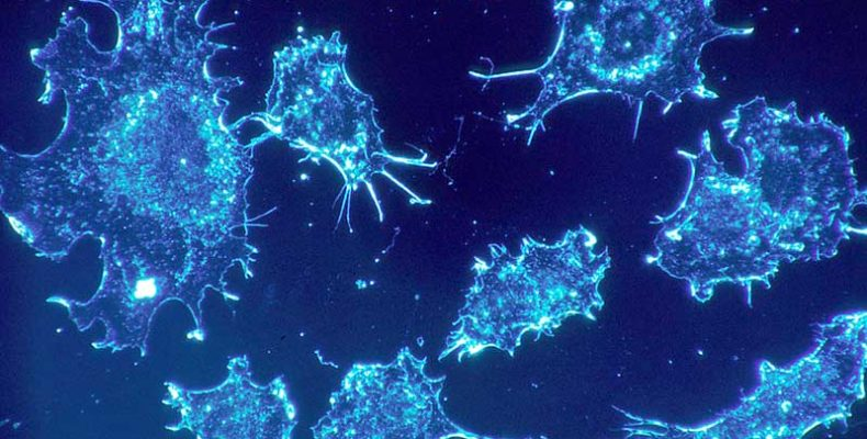 A molekuláris olló hatékonynak bizonyult két agresszív ráktípus kezelésében